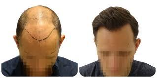 روشهای کاشت مو