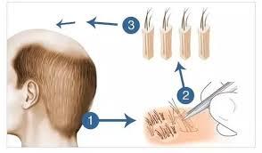 روش های کاشت مو